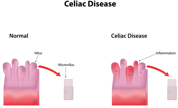 Celiac/Coeliac Disease Explained (Video)